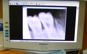 dentist using digital x-ray