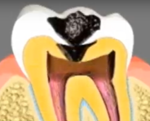 root canal for cavities